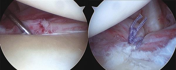 Le traitement chirurgical de l'instabilité de l'épaule sous arthroscopie.