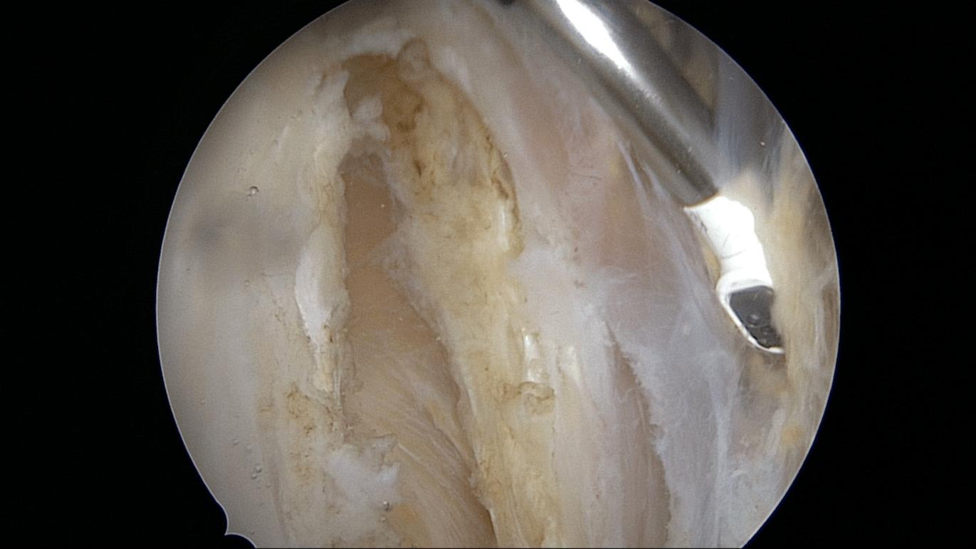Allongement du Fascia Lata sous arthroscopie