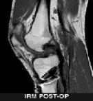 IRM-postop-lcp chirurgie du ligament croisé
