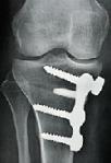 Ostéotomie arthrose du genou