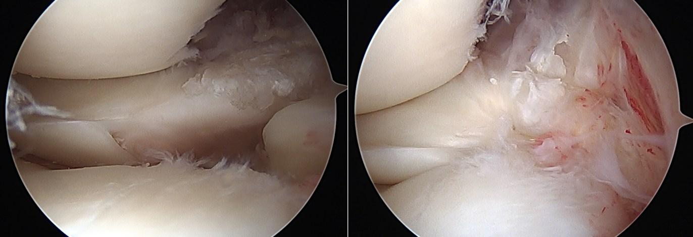 Rupture de la racine postérieure du ménisque externe et suture