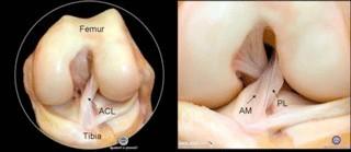 Anatomie ligament croisé antérieur