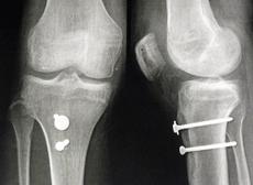 Chirurgie de la rotule : Corrections Osseuses