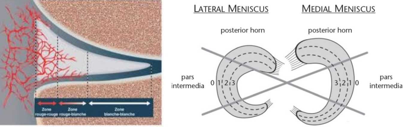 chirurgie du ménisque la suture